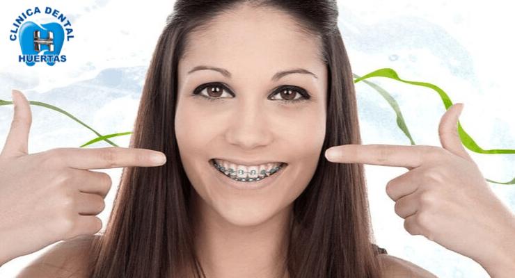 Ortodoncista en San Borja Lima