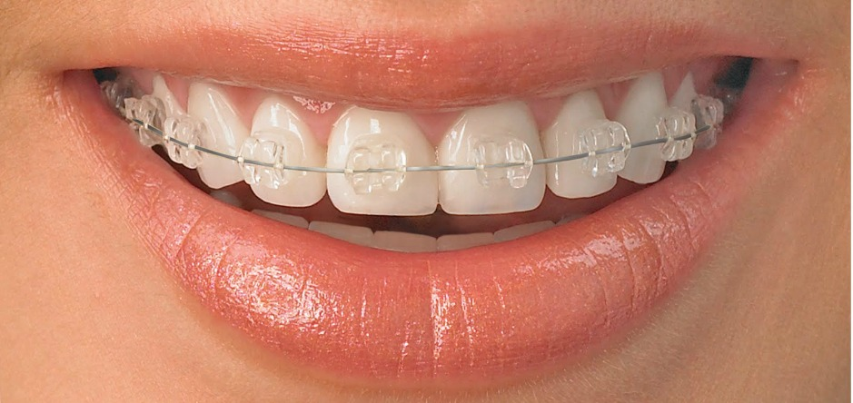 Dentista Brackets