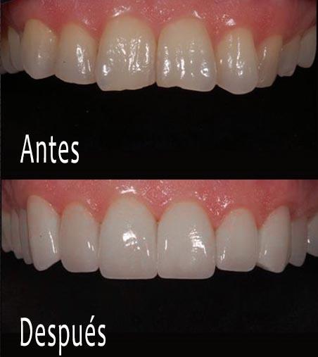 Carillas y coronas dentales: ¿en qué se diferencian y para qué sirven?